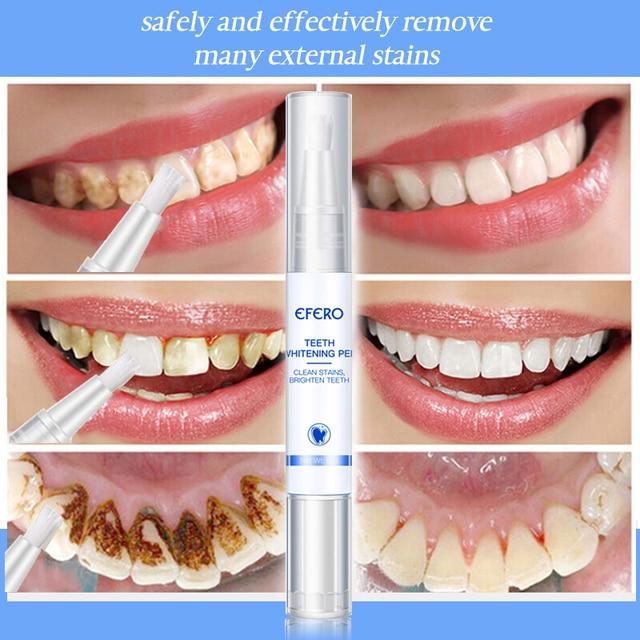 EFERO White Teeth Whitening Pen Tooth Gel Sbiancante Bleach Rimuovere Le Macchie Dental Strumenti di Igiene Orale Pulizia Dei Denti Placca Siero 6