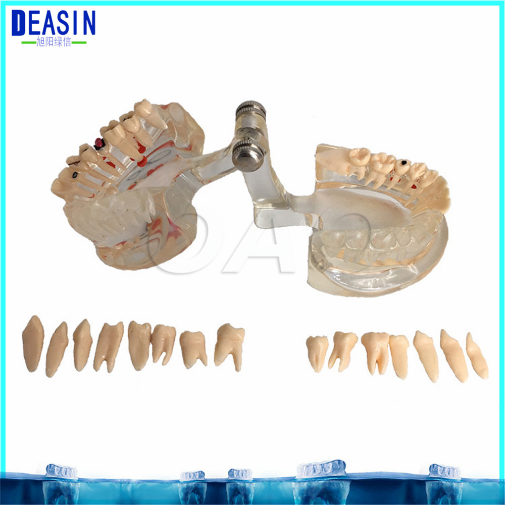 Dental Implant Teeth Half side can be removeble model Pathological Model Teaching& Restoration Bridge Tooth soarday 1 piece 2 times dental pathological model implant bridge crown treatment oral teaching model