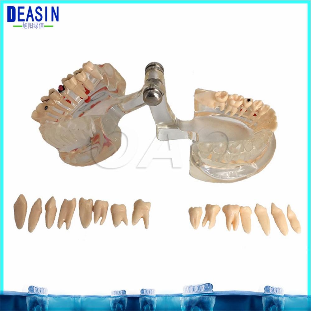 Dental Implant Teeth Half side can be removeble model Pathological Model Teaching& Restoration Bridge Tooth dental teeth model dentistry education model pathological tooth model tooth nerve dissection
