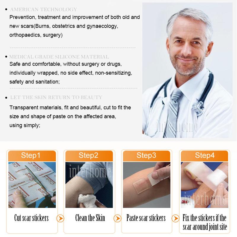 Self-adhesive-silicone-scar-paste(8)