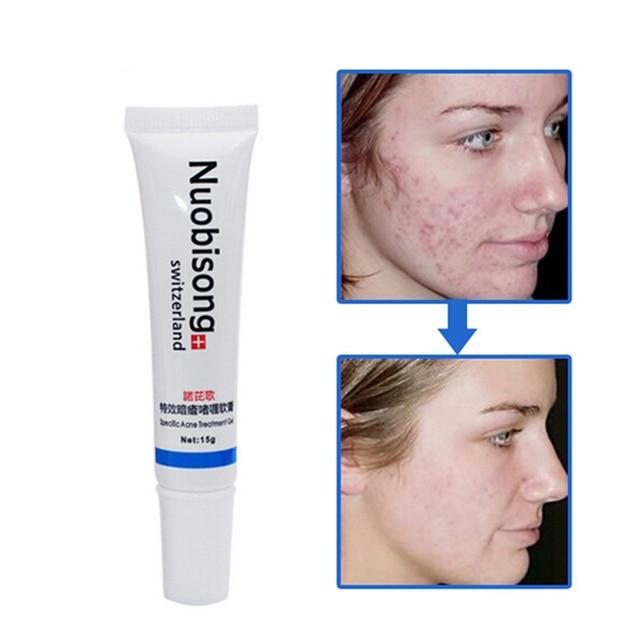 2 pc Nuobisong visage soins de la peau traitement le visage Boutons  cicatrice Vergetures retrait 83e11550cd7