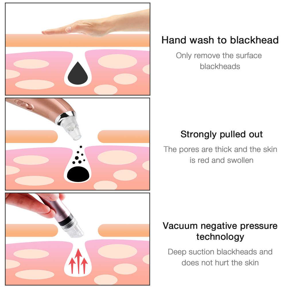 Foreverlily yeni yüz makinesi oksijen sprey siyah nokta cilt gençleştirme siyah nokta kaldırma beyazlatma cilt derin temizlik