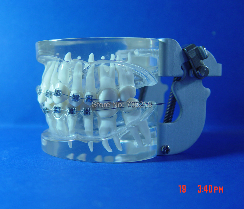 Teeth Orthodontic Model,Metal Braces Teeth Wrong Jaws Model Demonstration,Tooth Orthodontic Training Model transparent dental orthodontic mallocclusion model with brackets archwire buccal tube tooth extraction for patient communication