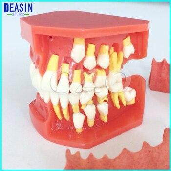Comparar Nueva llegada dental diente dientes modelo anatómico ...