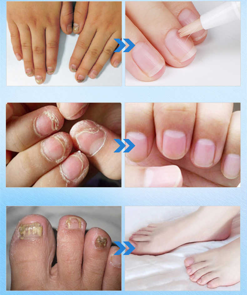 Detail Feedback Questions about 1pc 3ml Fungal Nail Treatment ...