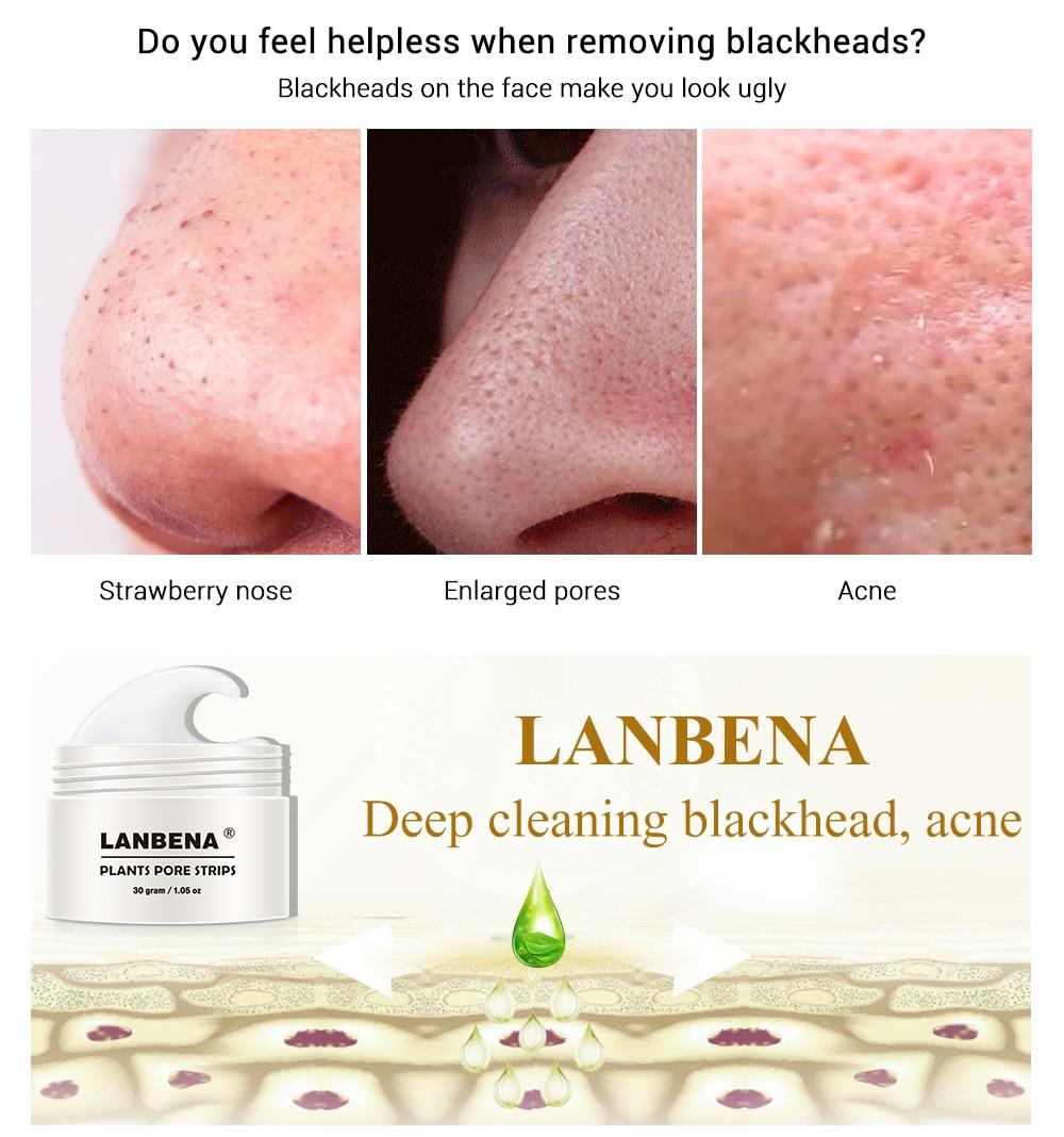 LANBENA Blackhead Remover Nose Mask Pore Strip Black Peel Off Facial Mask  Acne Treatment Black Deep Cleansing Face Skin Care