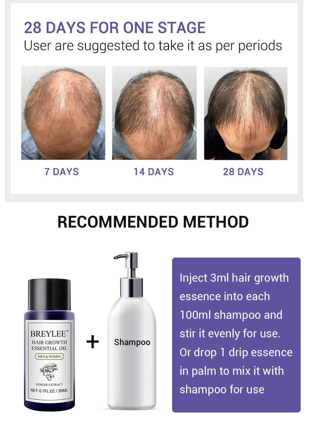 Aceite esencial para el crecimiento del cabello, productos potentes para la pérdida del cabello, cuidado del cabello, previene la calvicie, suero líquido para la pérdida de cabello, 1 unidad, TSLM2
