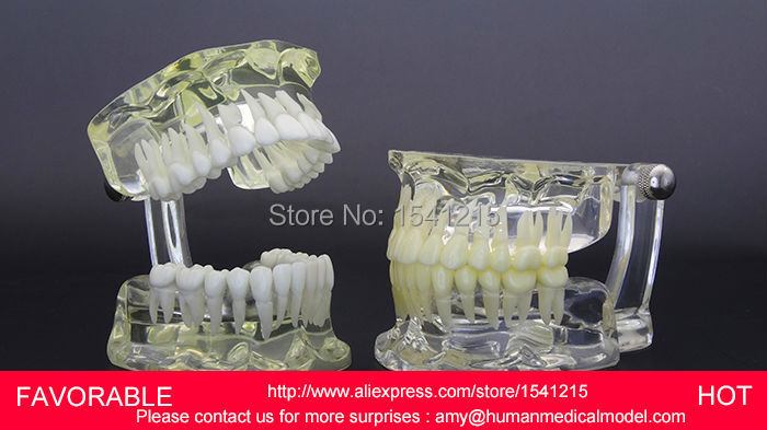 HUMAN NATURAL SIZE DENTAL MODEL MAGNIFY DENTAL TEETH MODEL ORAL CARE  ,STANDARD TRANSPARENT DENTAL MODEL DENTITION-GASEN-DEN038 dental pathology model anatomical model teeth model dental caries periodontal disease demonstration model gasen den050