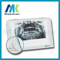 الأسنان الأشعة السينية فيلم إضاءة المشاهد لوحة الشاشة/Led فيلم المشاهد/X راي فيلم المشاهد/المشاهد الطبية/نيجاتوسكوب بنك واحد