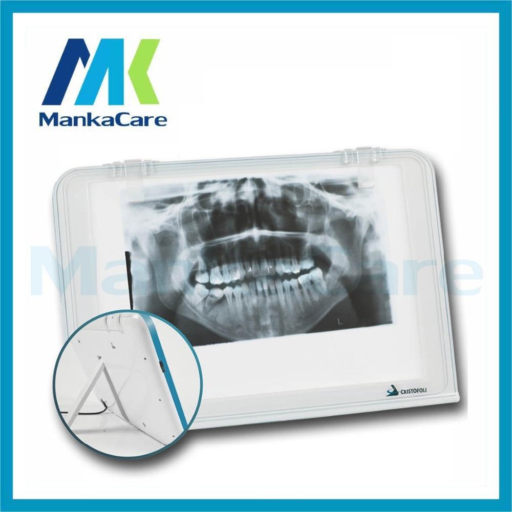 Dental X-ray Film Illuminator Viewer Light Panel Screen/Led Film Viewer/X Ray Film Viewer/Medical Viewer/Negatoscope One Bank