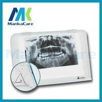 Dental X-ray film Visualizzatore Illuminatore Luce del Pannello/Led film viewer/X spettatore ray film/medico viewer/Negatoscopio una banca