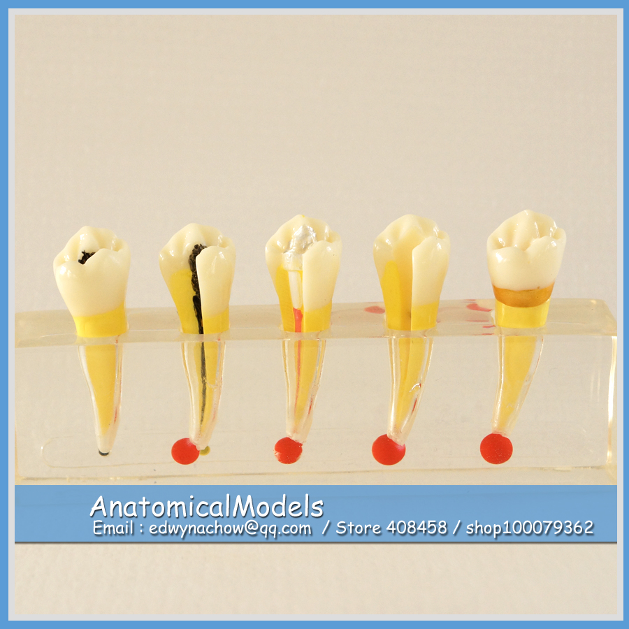 13151 DH1305 Transparent Dental Pulp Disease Clinical Communication Model , Medical Science Educational Dental Teaching Models 12461 cmam anatomy23 breast cancer cross section training manikin model medical science educational teaching anatomical models