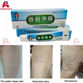 4Pcs Chinese Medicine Varicose Veins Treatment Leg Acid Bilges Itching Earthworm Lumps Old Bad Leg Vasculitis Cream Spider Veins