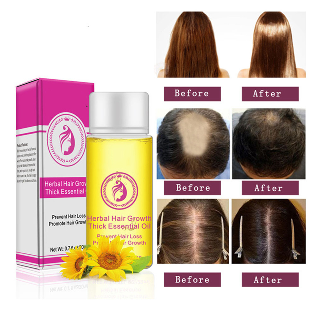 20mL Powerful Hair Growth Care Essence oil 20ml Treatment Repair Anti-Hair Loss products Faster Grow Thick Hair Moisturizes Hair(China)
