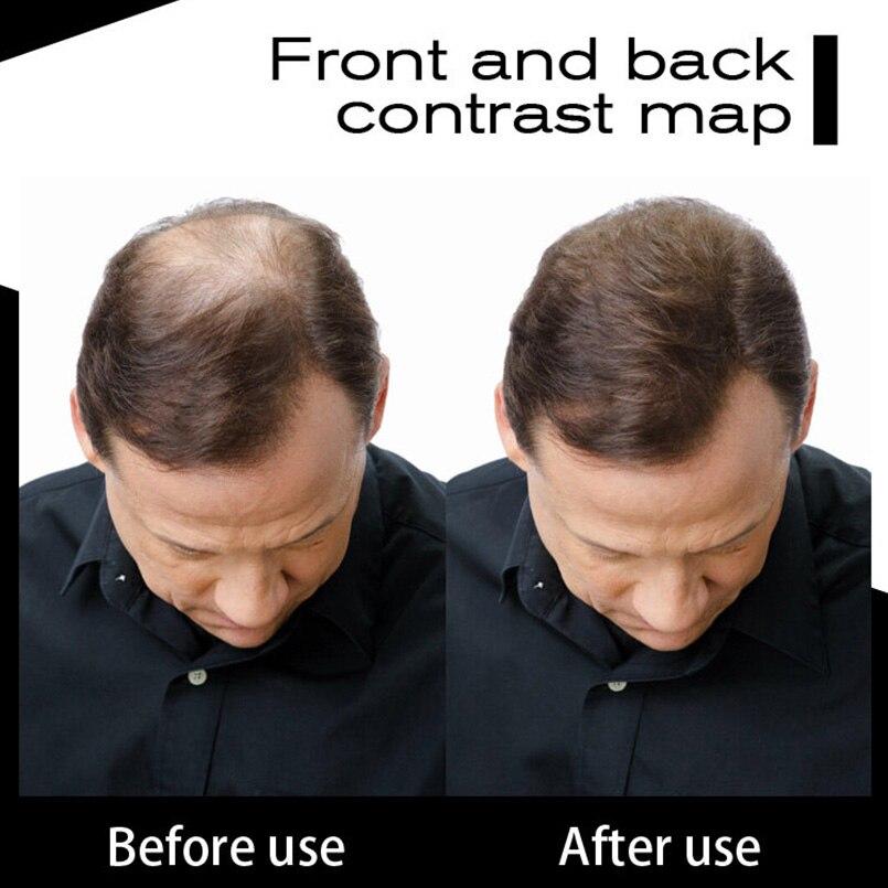 SEVICH 12g 10Colors Extension Wigs Baldness Hair Fibers Styling Powders Keratin Thickening Fiber Hair Spray Applicator Maquiagem