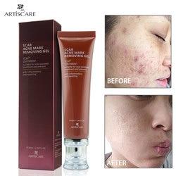 ARTISCARE Scar Removal Cream Ginseng Extract Skin Care Repair Spots Acne Treatment Stretch Mark facial blackhead Bleaching Cream