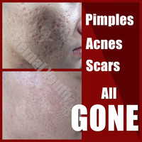 New 3 in 1 Acne Spot Pimple Treatment Natural Herbal Cream 3Days Pimples Removal Set