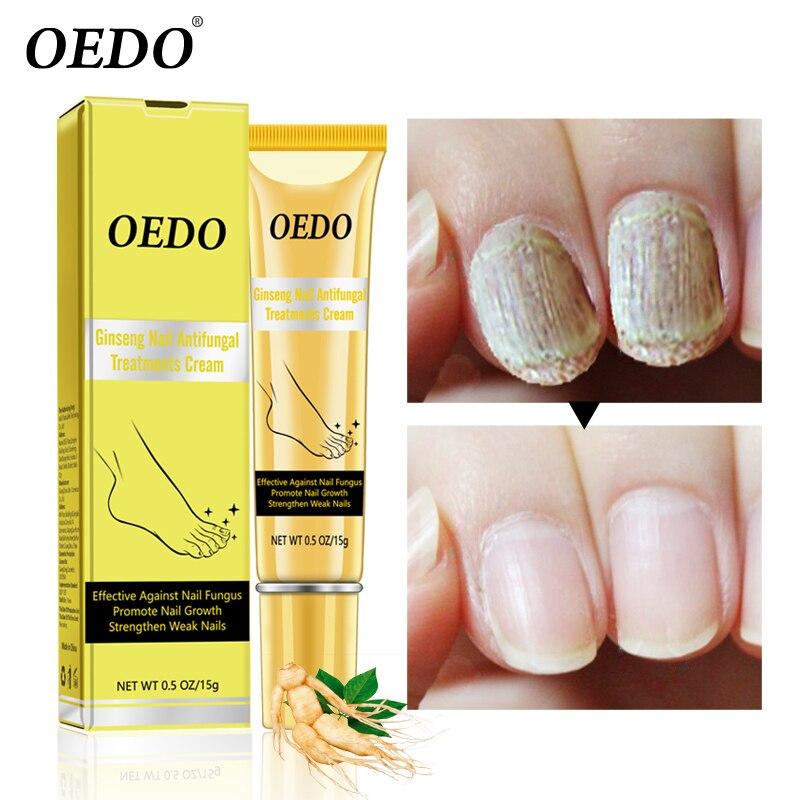 Ginseng Nail Antifungal Treatments Cream Herbal Removal Nail Fungus ...