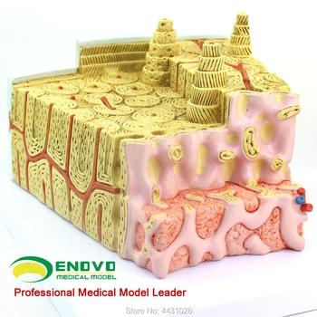 ENOVO Bone structure model microanatomy model bone marrow internal structure orthopedic teaching medicine teaching