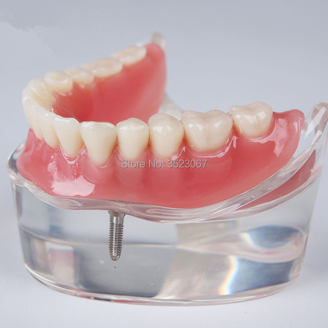 Human Dental lab denture teeth anatomy Removable Overdenture ...