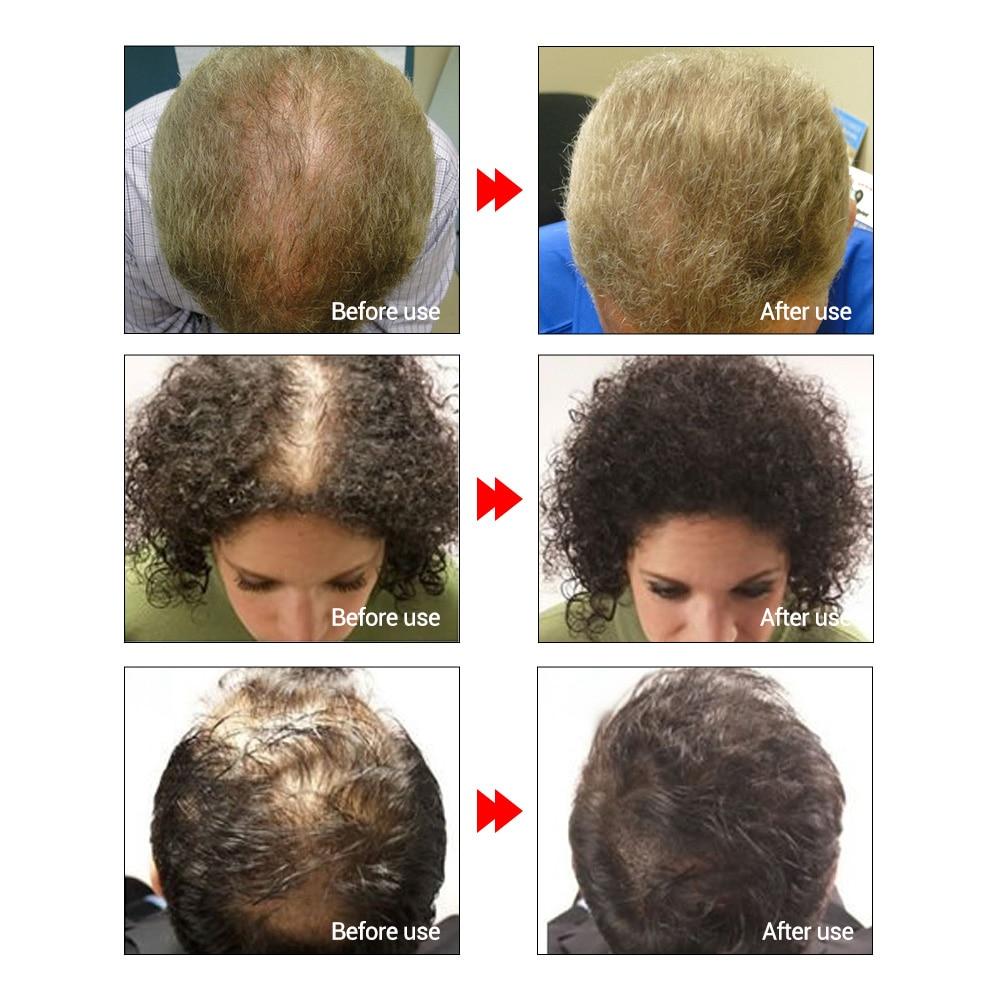 Купить с кэшбэком LANBENA Fast Powerful Hair Growth Essence Products Essential Oil Liquid Treatment Preventing Hair Loss Hair Care Andrea 20ml