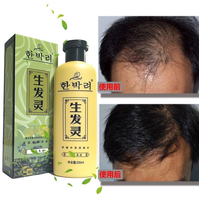 Schönheit & Gesundheit Haarpflege Und Styling Kompetent Manting Chinesischen Kräuter Medizin Anti Schuppen Juckreiz Shampoo Ausgleich Öl Control Pflegende Shampoo Professional Hair Pflege ZuverläSsige Leistung