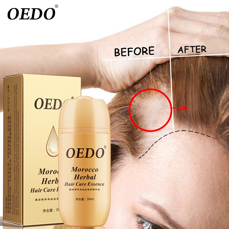 30ML Moroccan Hair Loss Treatment Ginseng Ginger Hair Growth Oil Herbal For Dry Hair Care Types Scalp Herbal Treatment Essence 3