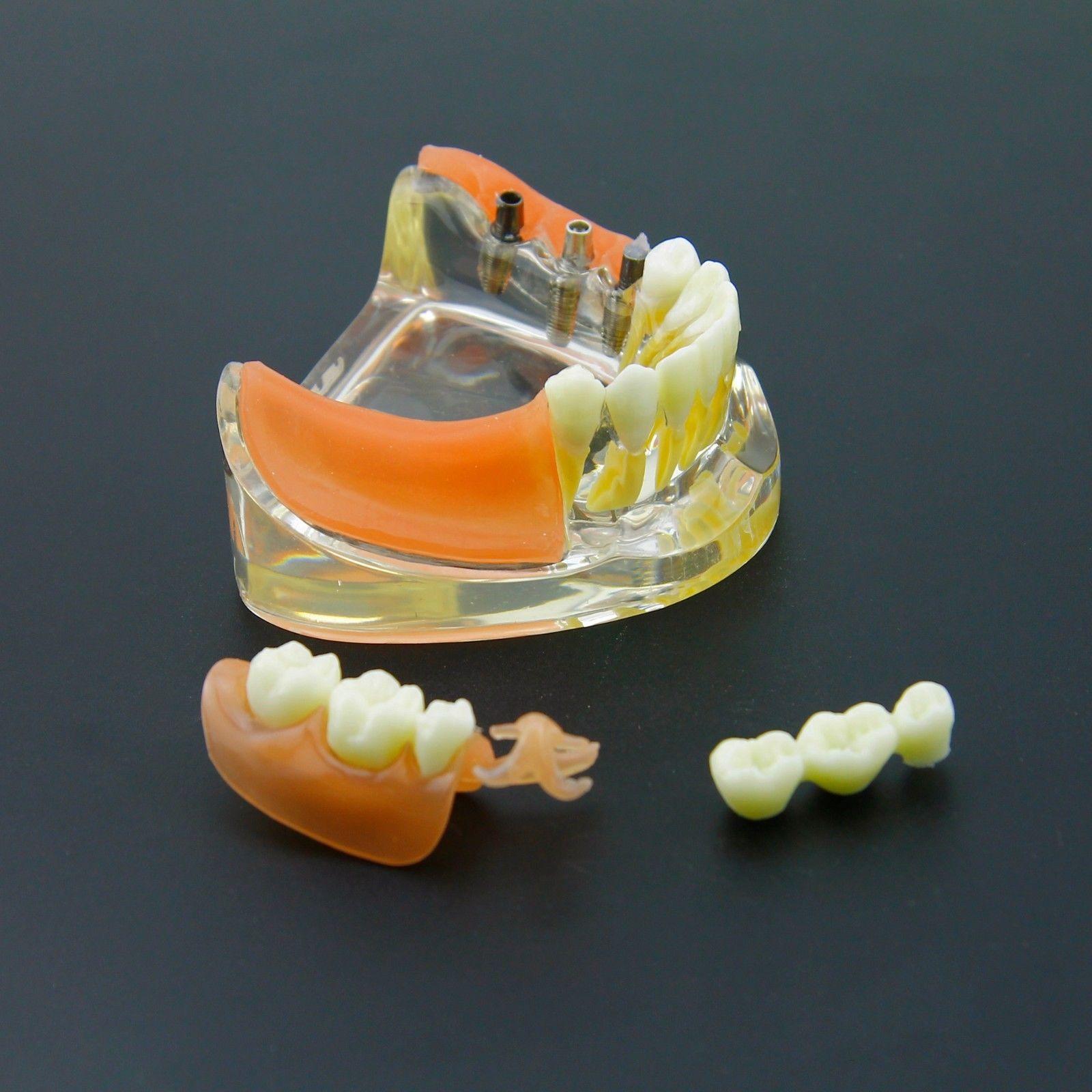 Dental Implant Restoration Teeth Model Removable Bridge Denture Demo 6006