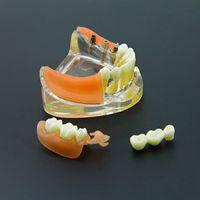 Dental Implant Restoration Teeth Model Removable Bridge Denture Demo #6006
