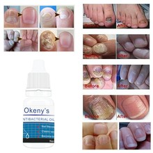 Good Result Nail Treatment Pen Onychomycosis Paronychia Anti Fungal Infection Chinese Herbal Toe Fungus