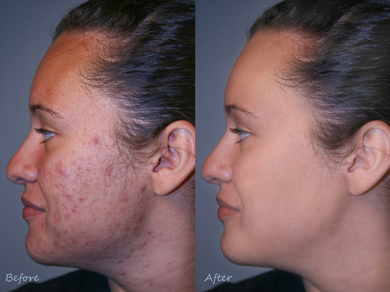 scar-facial-cream-post-op