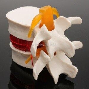 Image 3 - Dental 1:1 Menschlichen anatomie skelett Wirbelsäule Bandscheibenvorfall Lehre Modell