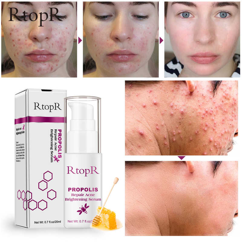 RtopR Propolis Acne Treatment Serum Repair Acne Brightening Shrink Pore Eliminates Acne Scar Spot Essence Oil control Serum 20ml