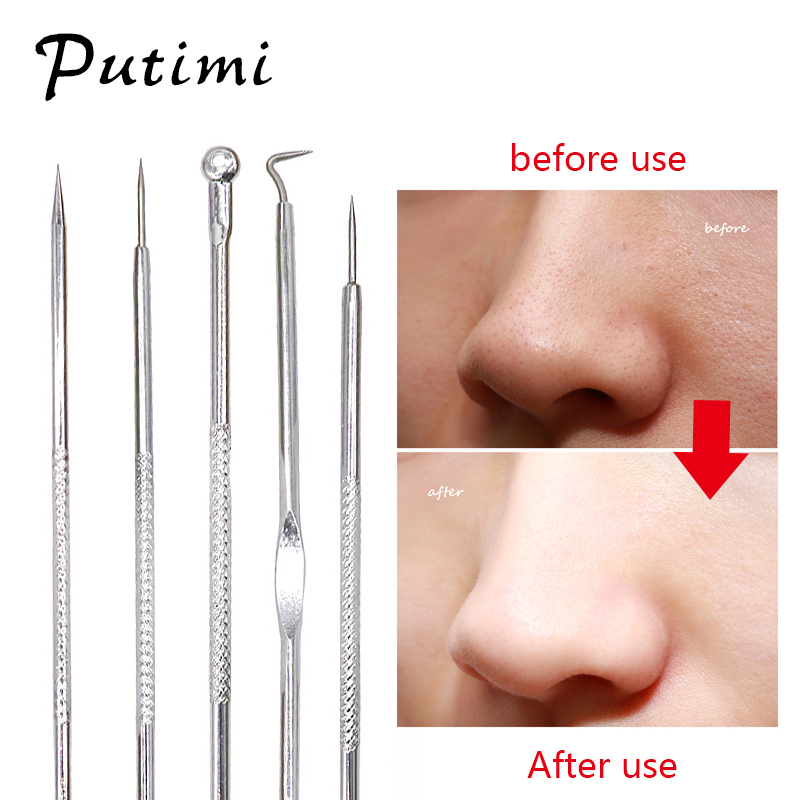 Putimi 5Pcs Acne Removal Needle Squeeze Out Pimples Blackhead Comedone Remover Tool Acne/Blackhead Extractor Tool,Spoon For Face