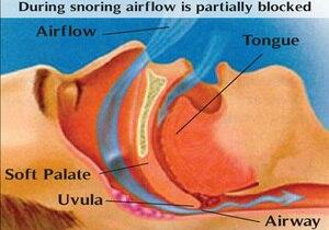 Image 4 - Dispositivo profesional antironquidos para el cuidado de la salud, 2 uds., Clip para la nariz, alivia los ronquidos para detener los ronquidos, para hombres y mujeres