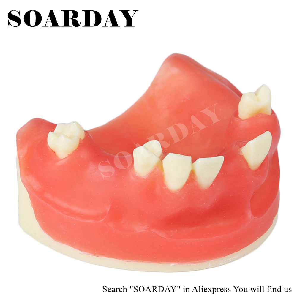 SOARDAY Dental Red Maxillary Implant Model with Soft silicone Practice Model Education Model soarday implant