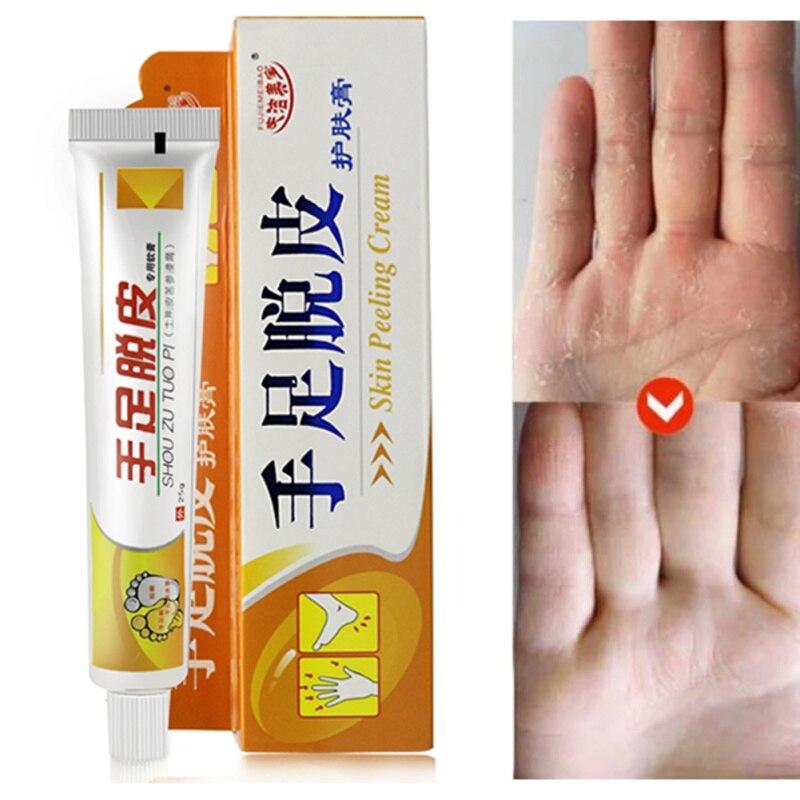 Hand Foot Crack Cream Heel Chapped Peeling Repair Frostbite Anti Dry Crack Skin Cream