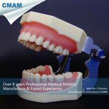 CMAM-DT2012 Basic Yet Comprehensive A Type Dental Training Model with 28pcs Screw Teeth