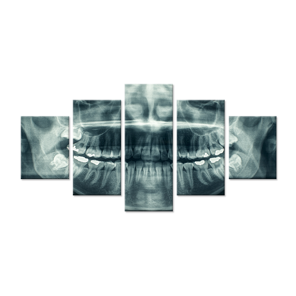 Modern Home Canvas Art X Ray Dental Tooth Oral Panoramic Peel and Stick Wall Decals The Picture Teeth Decay Print On Canvas