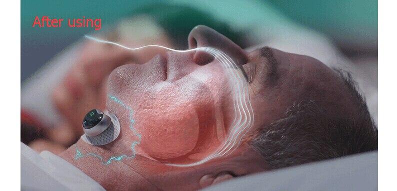 Smart Snore Stopper Anti Snore ronco Lösung komfortable anti Schnarchen Biosensor mit APP und schlafapnoe monitor CPAP ersatzstoff - 6