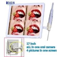 17 дюймов стоматологической установки типа монитор стоматологического оборудования PIP устные Камера интраоральной Камера USB Интраоральной