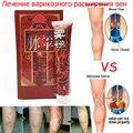 Veias varicosas Pomada Tratamento de Vasculite. flebite. angiite Inflamação Dos Vasos Sanguíneos Podre Pernas