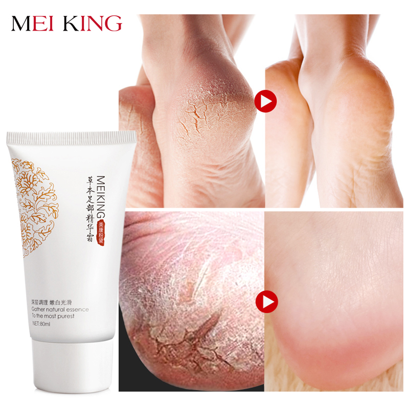 MEIKING Baby Foot Care Deep Exfoliation for Feet peel Anti Drying Remove Dead Skin Foot Lotion Exfoliating Cream foot mask 80g
