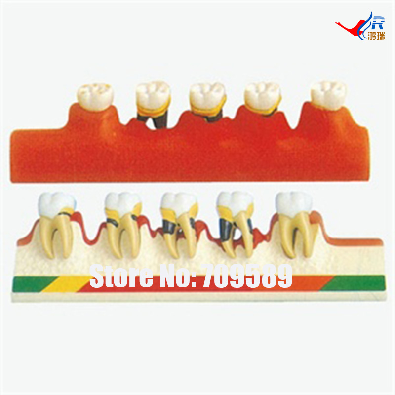 Periodontal Disease Model, Dental Care Model dental pathology model anatomical model teeth model dental caries periodontal disease demonstration model gasen den050