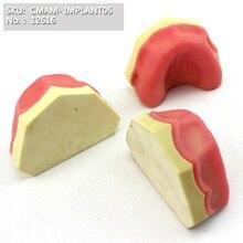 CMAM/12616 зубно-зубная челюсть, имплантат, человеческие стоматологические медицинские анатомические модели обучения