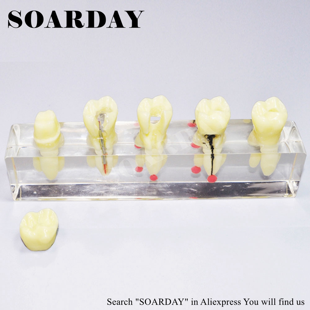 SOARDAY Tooth Root Canal Restoration Model Oral Dental Training Materials Tooth Nerve Model soarday tooth root canal restoration model oral dental training materials tooth nerve model