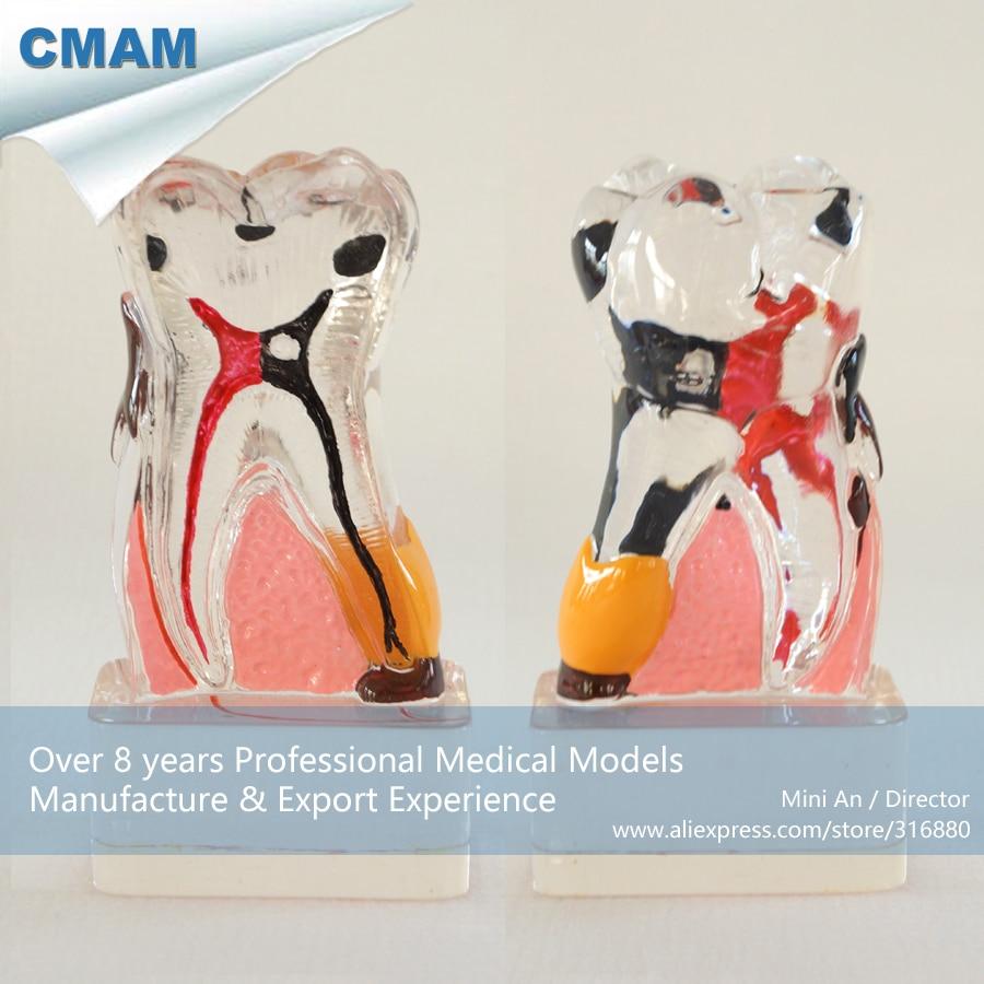 DH/13073, 4Times Bigger Periodontal Disease, Clear, Pathology Dental Model, Educational Teaching Anatomical ModelsDH/13073, 4Times Bigger Periodontal Disease, Clear, Pathology Dental Model, Educational Teaching Anatomical Models