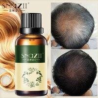 Hair Growth Anti Hair Loss Essential Oil EssenceLiquid 30ml Dense Hair Fast Sunburst Hair Growth Grow