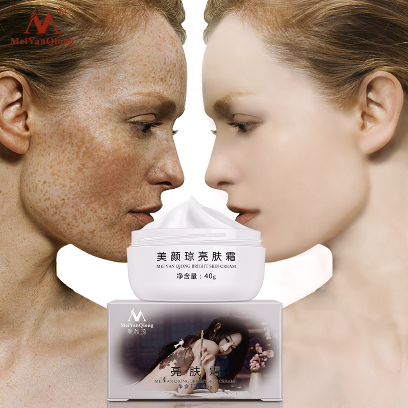 MeiYanQiong Strong Effects Powerful Whitening Freckle Cream 40g Remove Melasma Acne Spots Pigment Melanin Face Care Cream