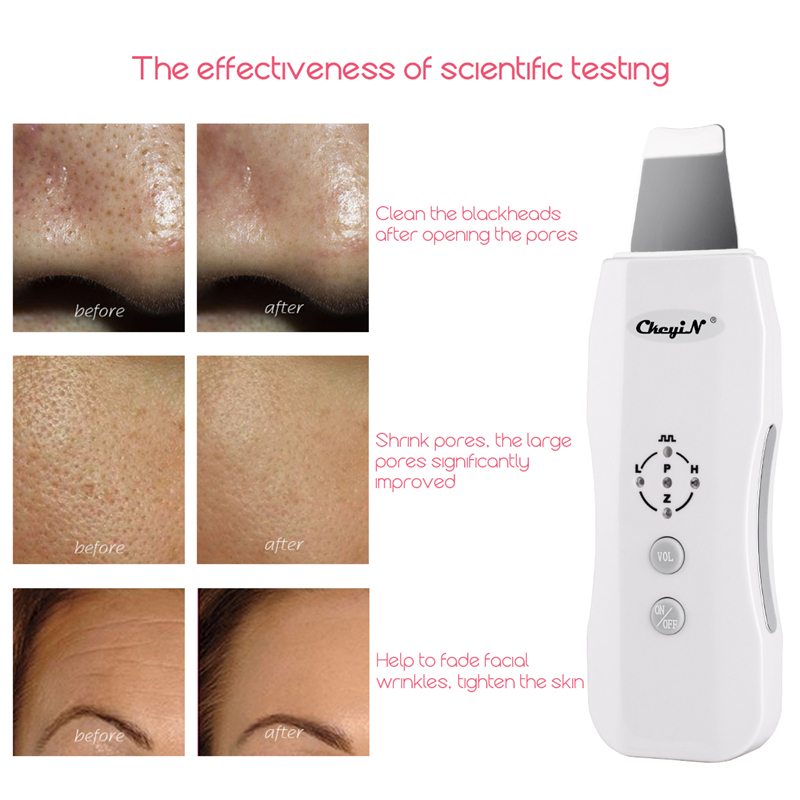 Portable Anion Ultrasonic Vibration Face Cleansing Machine Beauty Cleaning Scrubber Care Removal Tool Ultrasound Skin Cleaner 49